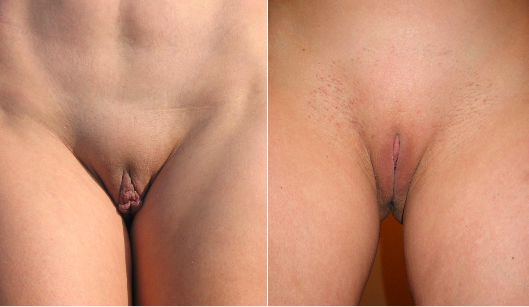 nude-sexually-aroused-clitoris-before-and-after-housewife-milf-real